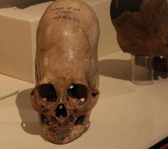 Peruvian skull